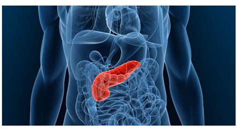 Tumor neuroendócrino do Pâncreas: principais sintomas ...