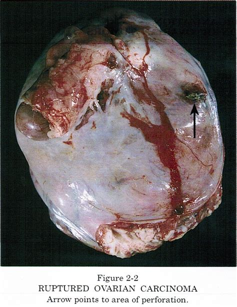 Tumor: Ovarian Tumors