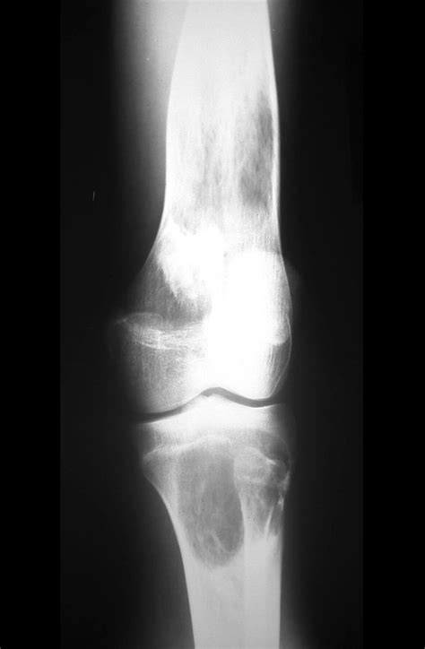 Tumor Symptoms: Bone Tumor In Knee Symptoms