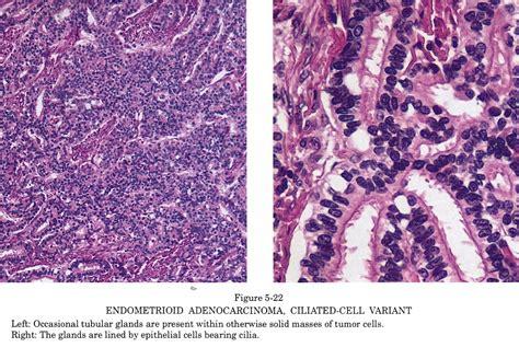 Tumor Symptoms: Granulosa Cell Tumor Symptoms