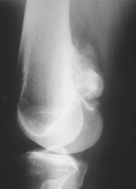 Tumor Symptoms: Tumor Knee Symptoms