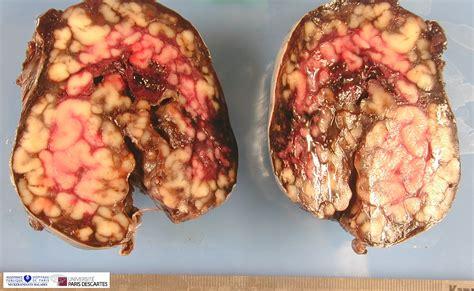 Tumor: Tumor In Ovary