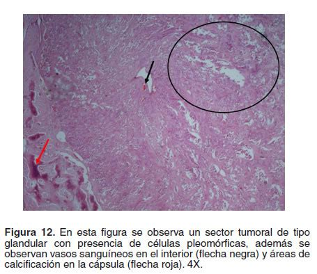 Tumores En La Glandula Parotida Pictures to Pin on ...