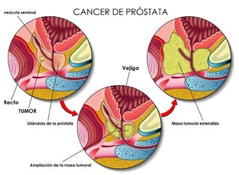 Una opción cuando el cáncer de próstata no tiene cura ...