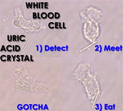 Uric Acid Crystal Pictures - GoutPal Gout Facts