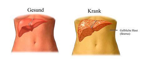 Ursachen des Ikterus, Bilirubin und Hepatitis, Gelbsucht ...