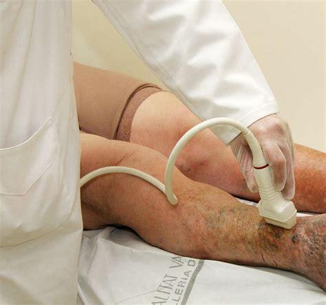 Varices y arañitas en las piernas, sin dolor ni cirugia ...