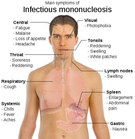 We All Have Mononucleosis