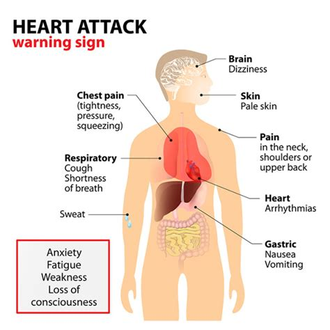 What Causes Heart Attacks—and How to Prevent Them ...
