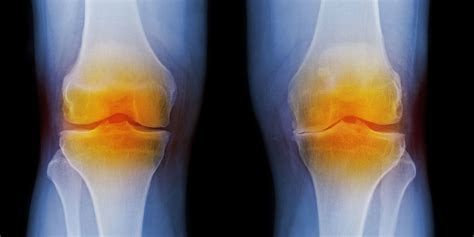 What is osteoarthritis? Causes, treatment and symptoms