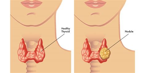 What to do for thyroid nodules – Liver Doctor