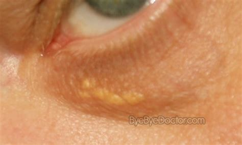 White Spots on Skin – Pictures, Causes and Treatment