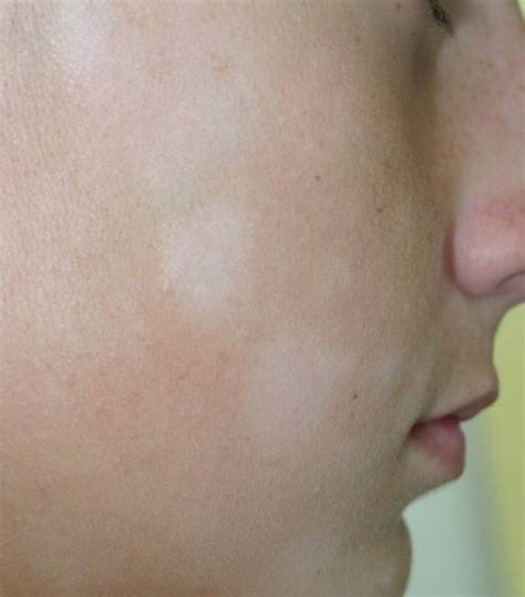 White Spots on Skin   Why you get them?   Women s Tribe