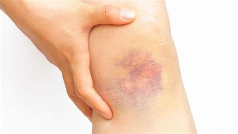 Why Do My Bruises Have So Many Different Colors?