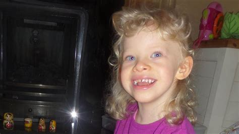 Williams syndrome means health issues, outgoing ...