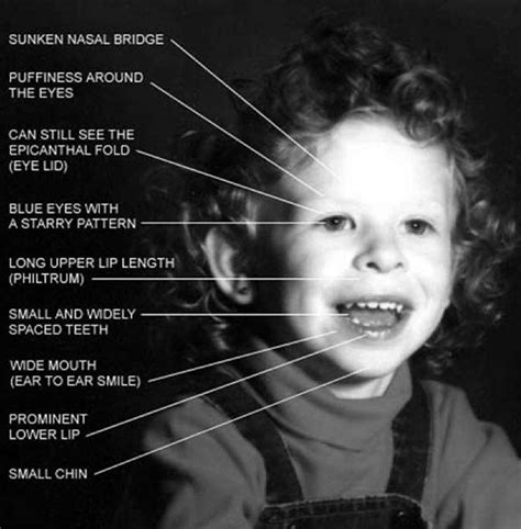 Williams Syndrome   Pictures, Causes, Symptoms, Treatment ...