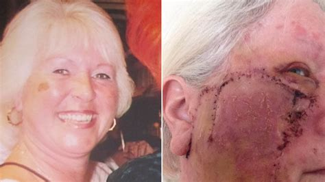 Woman Addicted to Tanning Left With Gaping Hole in Face ...
